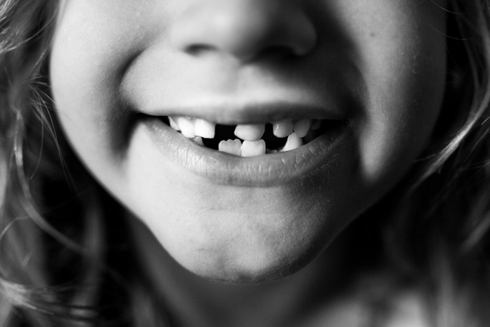 10 picture close up of child mouth with loose from tooth by Natasha Kelly